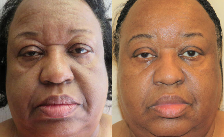 PDO non invasive facelifts Thread Lifts