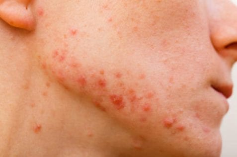 25769385 - acne skin because the disorders of sebaceous glands productions