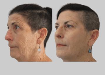 facial-rejuventation-before-after